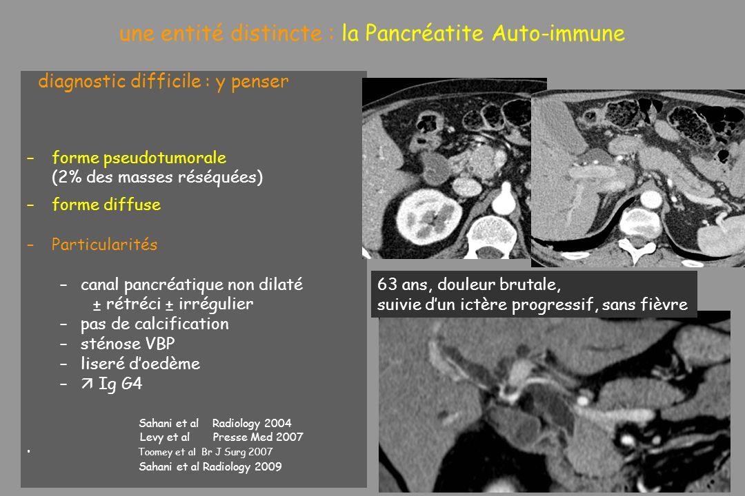 une entité distincte : la Pancréatite Auto-immune