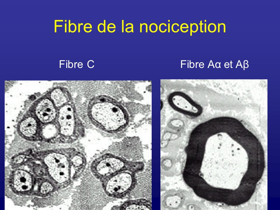 Fibre de la nociception