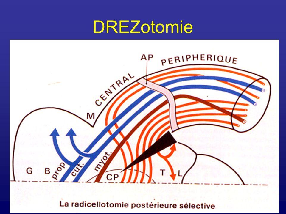 DREZotomie