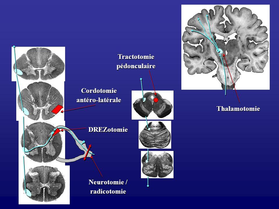 Tractotomie pédonculaire