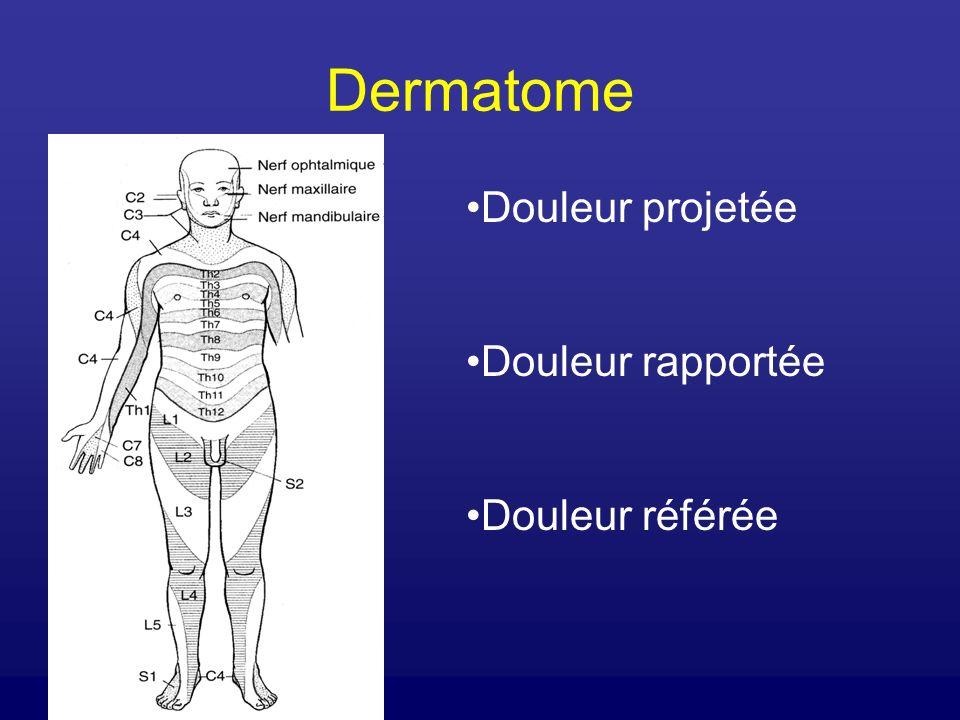 Dermatome Douleur projetée Douleur rapportée Douleur référée