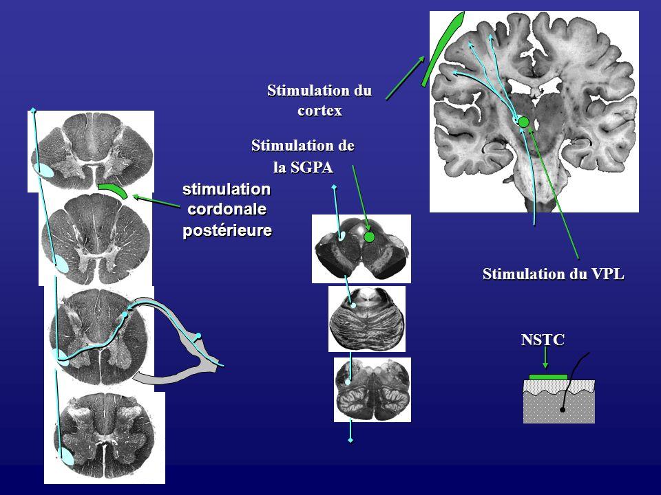 stimulationcordonale postérieure
