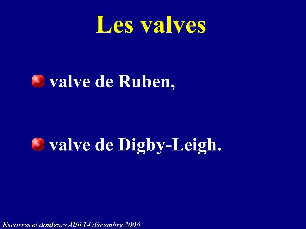 Les valves valve de Ruben, valve de Digby-Leigh.