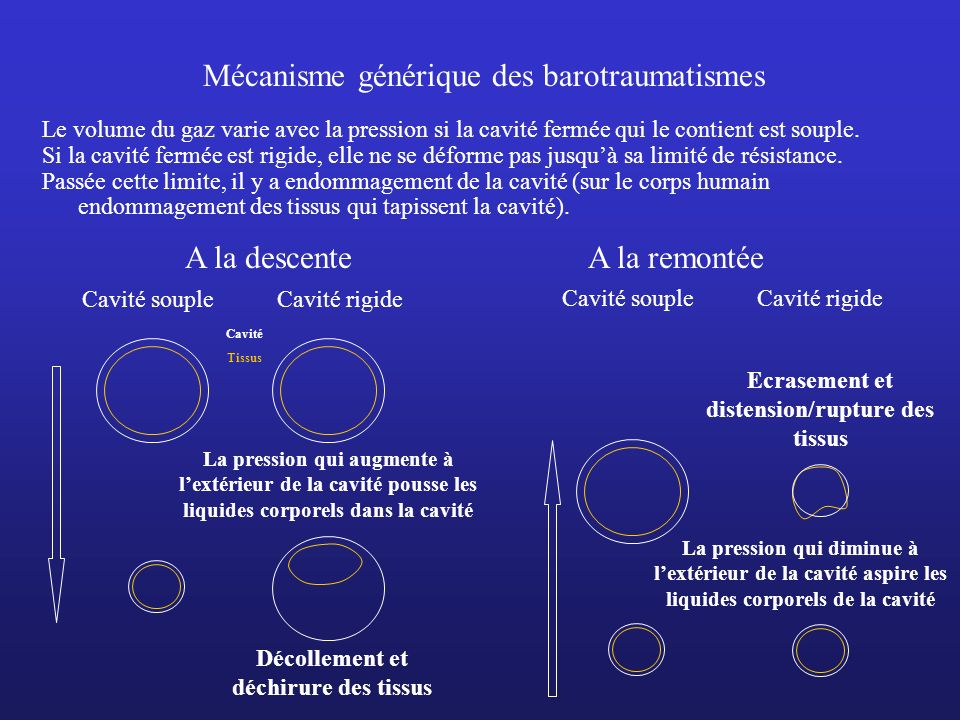 Mécanisme générique des barotraumatismes