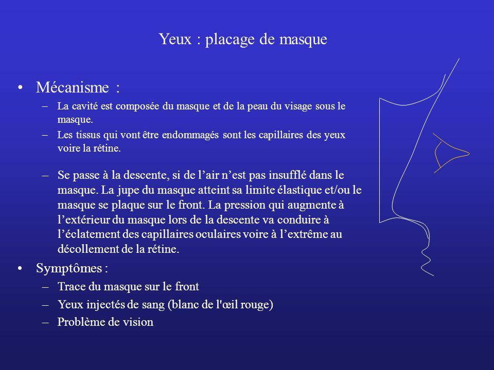 Yeux : placage de masque