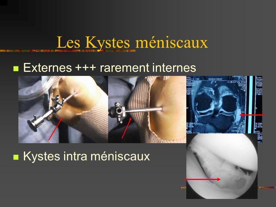 Les Kystes méniscaux Externes +++ rarement internes