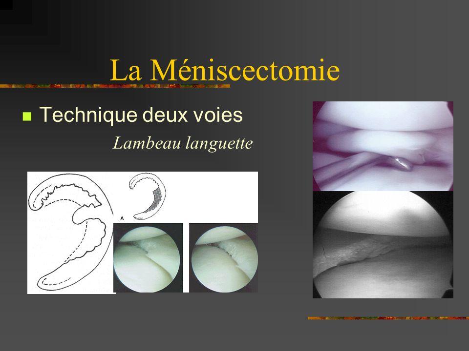 La Méniscectomie Technique deux voies Lambeau languette