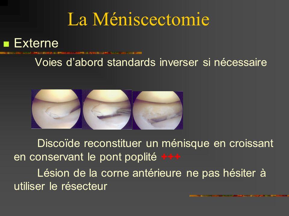 La Méniscectomie Externe