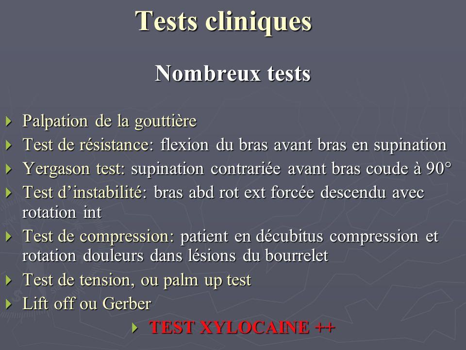 Tests cliniques Nombreux tests Palpation de la gouttière