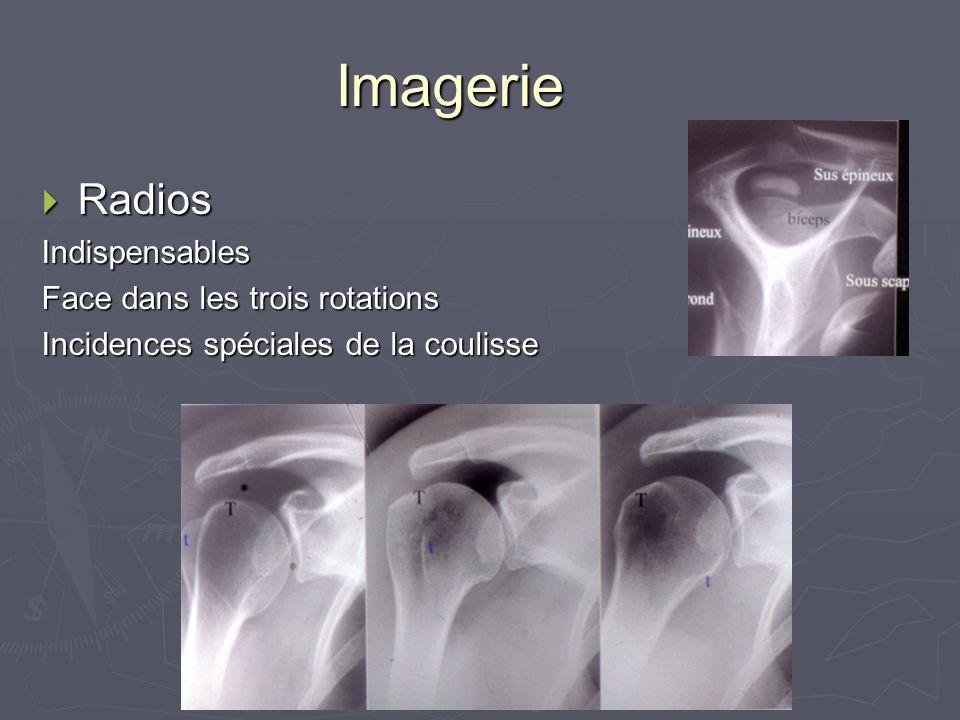 Imagerie Radios Indispensables Face dans les trois rotations