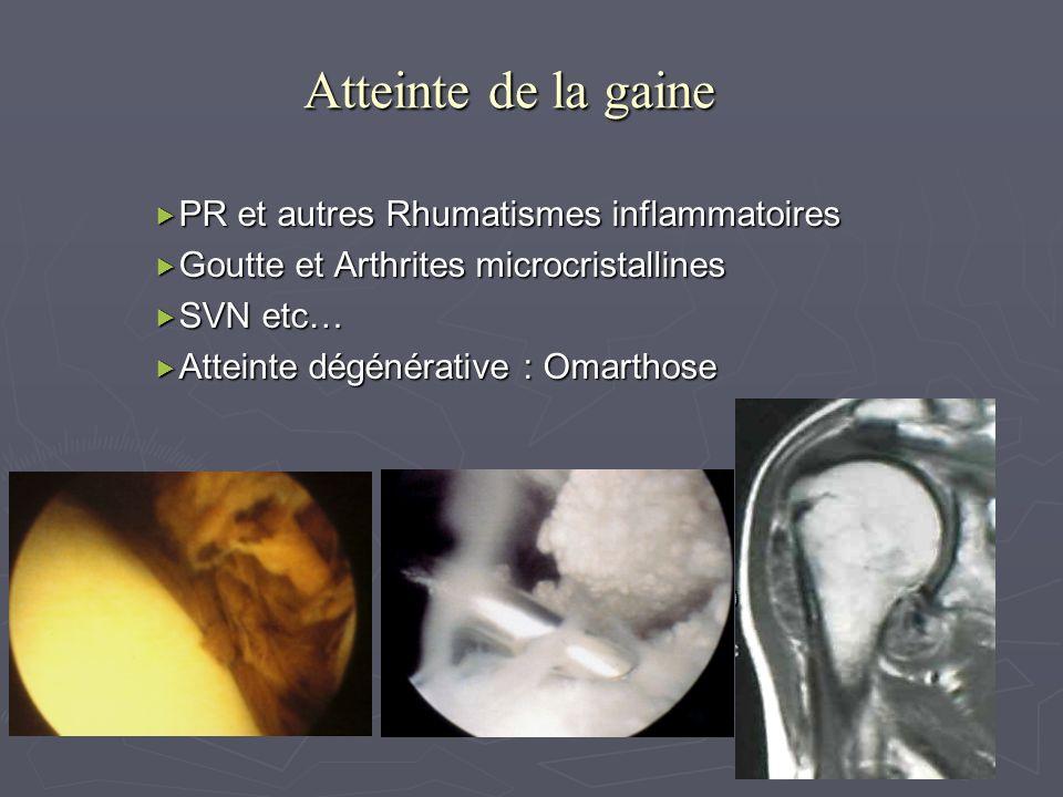 Atteinte de la gaine PR et autres Rhumatismes inflammatoires