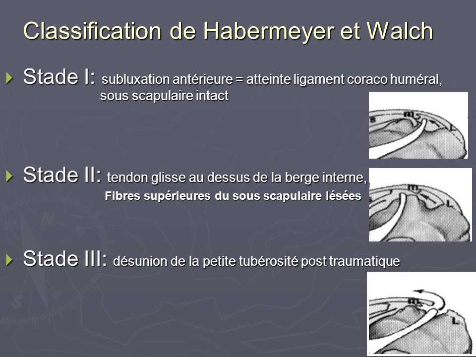 Classification de Habermeyer et Walch