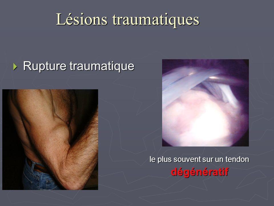 Lésions traumatiques Rupture traumatique le plus souvent sur un tendon
