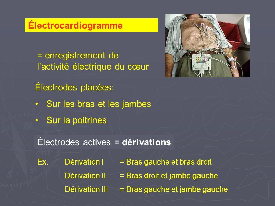 = enregistrement de l'activité électrique du cœur