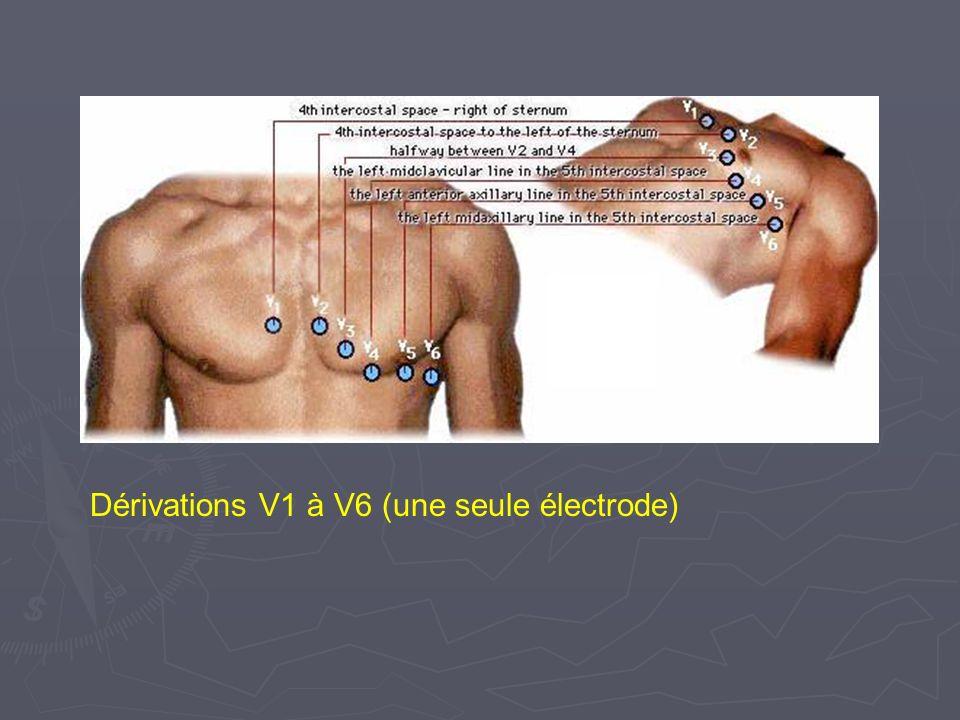 Dérivations V1 à V6 (une seule électrode)