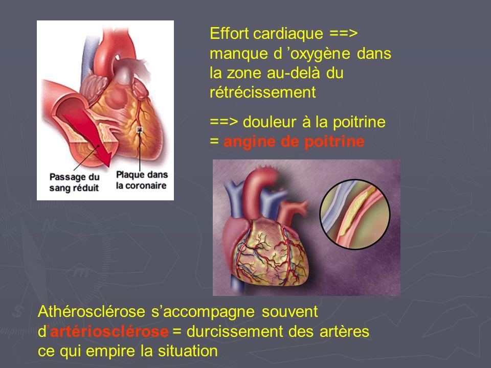 Effort cardiaque ==> manque d 'oxygène dans la zone au-delà du rétrécissement
