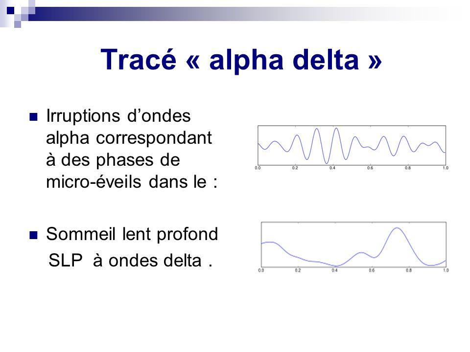 Tracé « alpha delta » Irruptions d'ondes alpha correspondant à des phases de micro-éveils dans le :