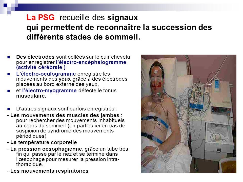 La PSG recueille des signaux qui permettent de reconnaître la succession des différents stades de sommeil.