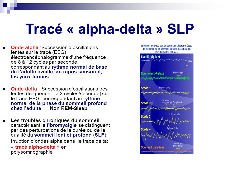 Tracé « alpha-delta » SLP