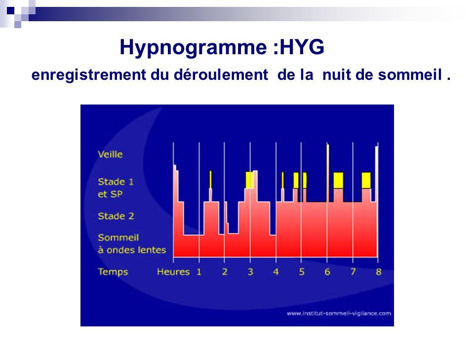 Hypnogramme :HYG enregistrement du déroulement de la nuit de sommeil .
