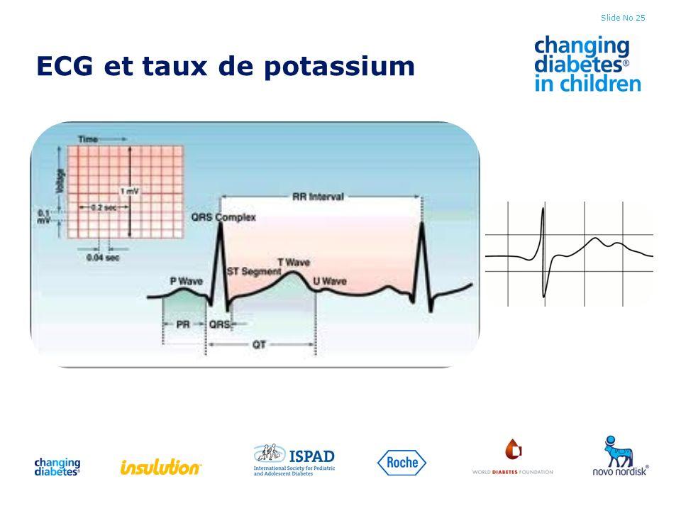ECG et taux de potassium