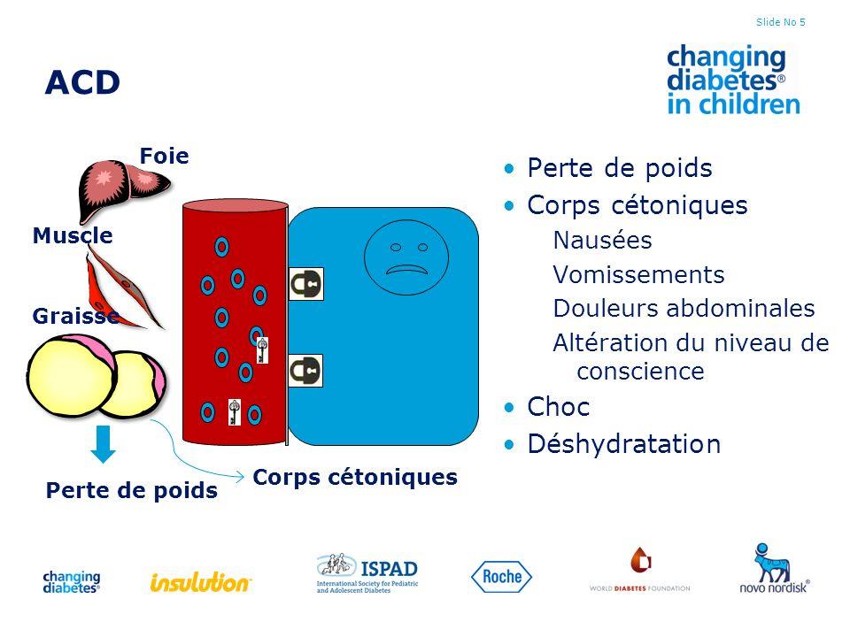 ACD Perte de poids Corps cétoniques Choc Déshydratation Nausées