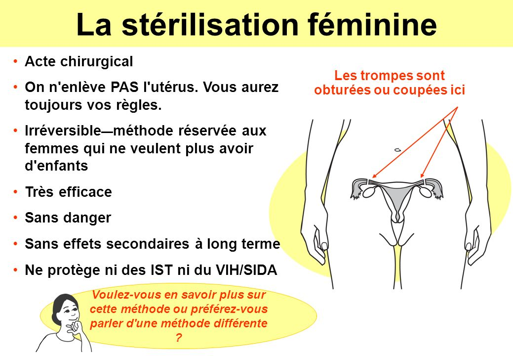 La stérilisation féminine Les trompes sont obturées ou coupées ici