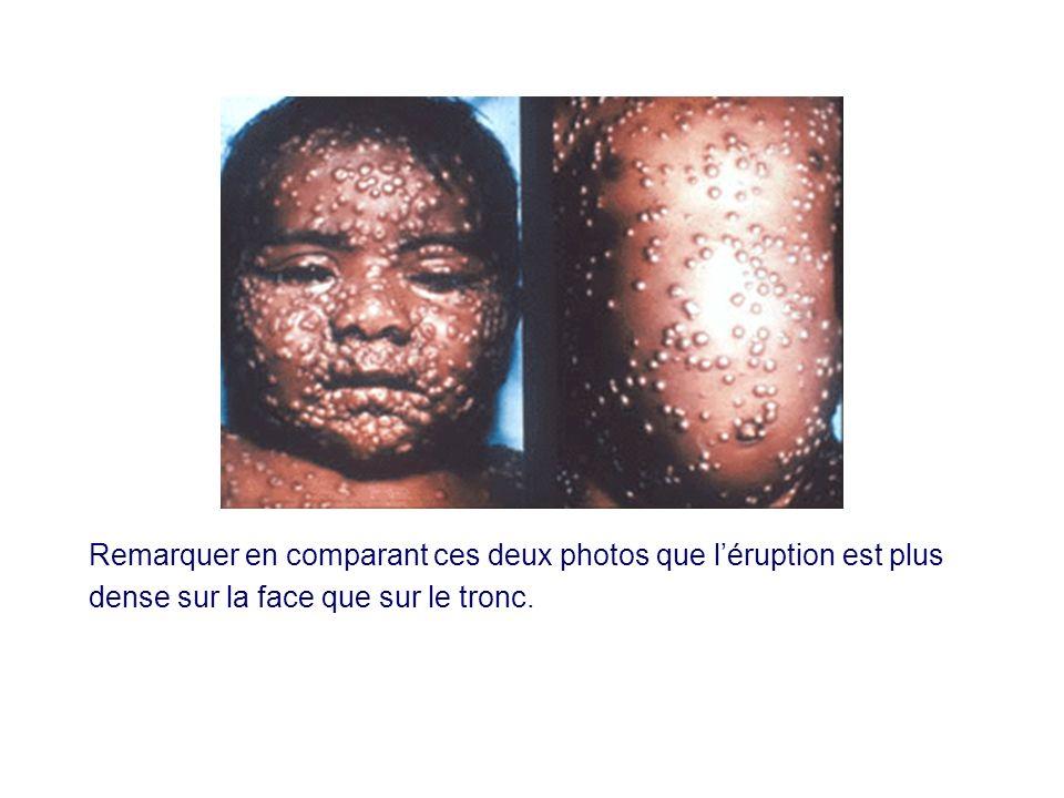 Remarquer en comparant ces deux photos que l'éruption est plus dense sur la face que sur le tronc.