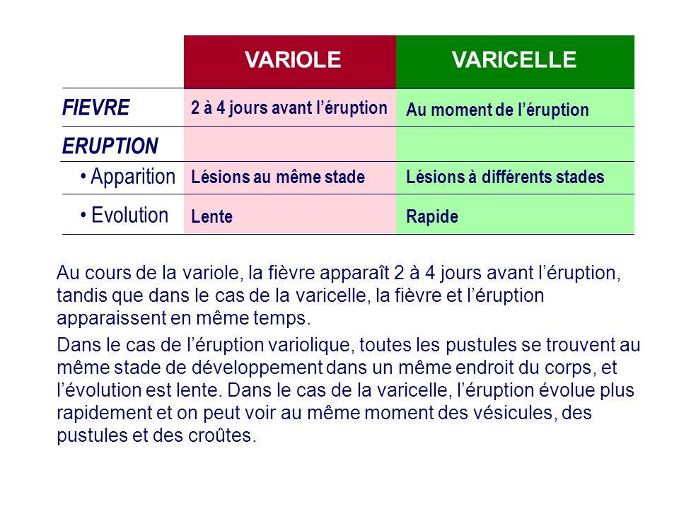 VARIOLE VARICELLE FIEVRE ERUPTION Apparition Evolution