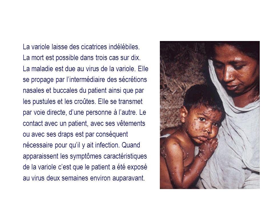 La variole laisse des cicatrices indélébiles