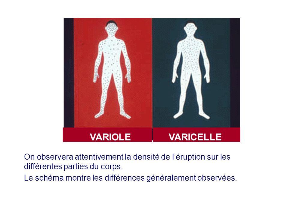 VARIOLE VARICELLE. On observera attentivement la densité de l'éruption sur les différentes parties du corps.