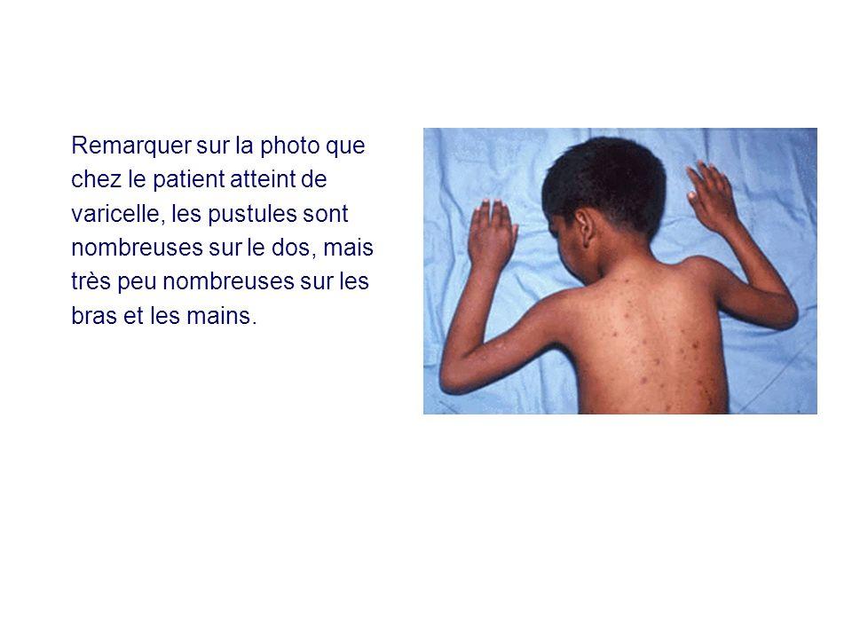 Remarquer sur la photo que chez le patient atteint de varicelle, les pustules sont nombreuses sur le dos, mais très peu nombreuses sur les bras et les mains.