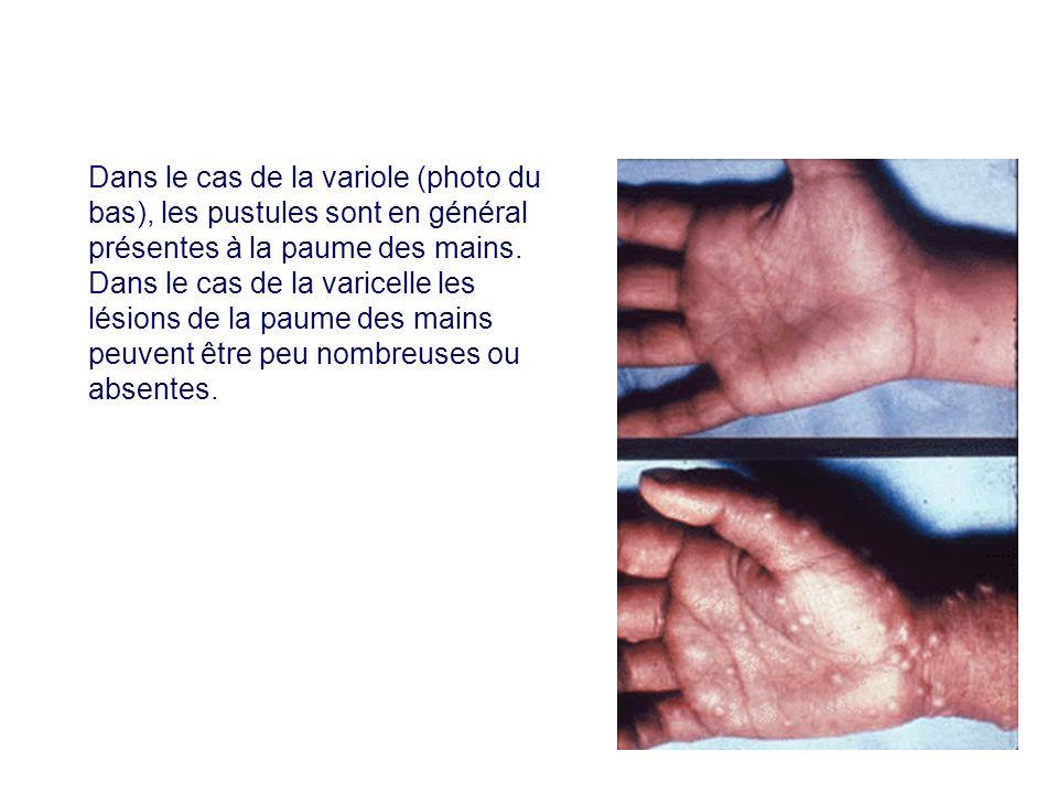 Dans le cas de la variole (photo du bas), les pustules sont en général présentes à la paume des mains.