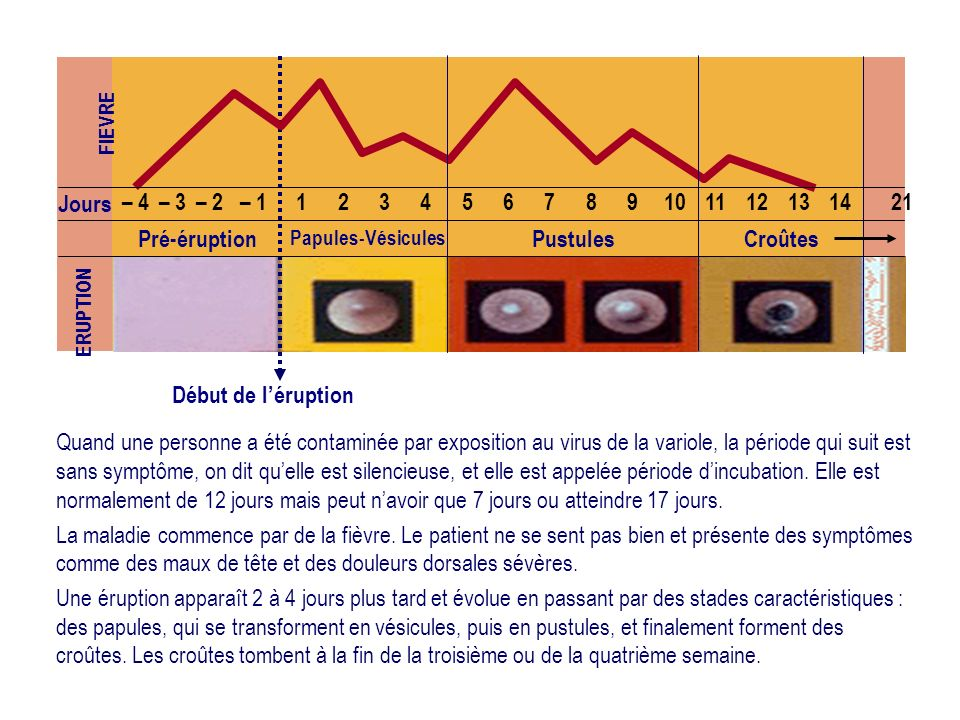 Jours – 4 – 3 – 2 – 1 1 2 3 4 5 6 7 8 9 10 11 12 13 14 21 Pré-éruption