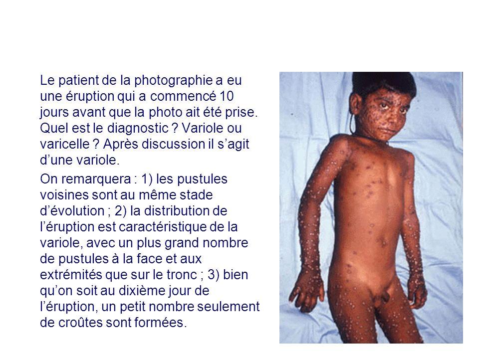 Le patient de la photographie a eu une éruption qui a commencé 10 jours avant que la photo ait été prise. Quel est le diagnostic Variole ou varicelle Après discussion il s'agit d'une variole.