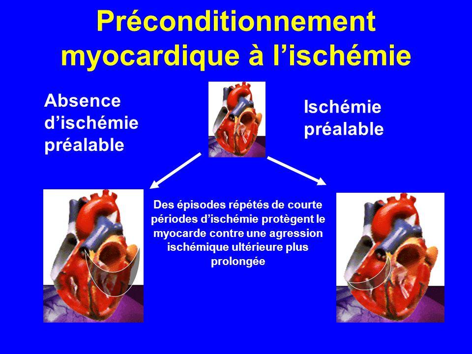 Préconditionnement myocardique à l'ischémie