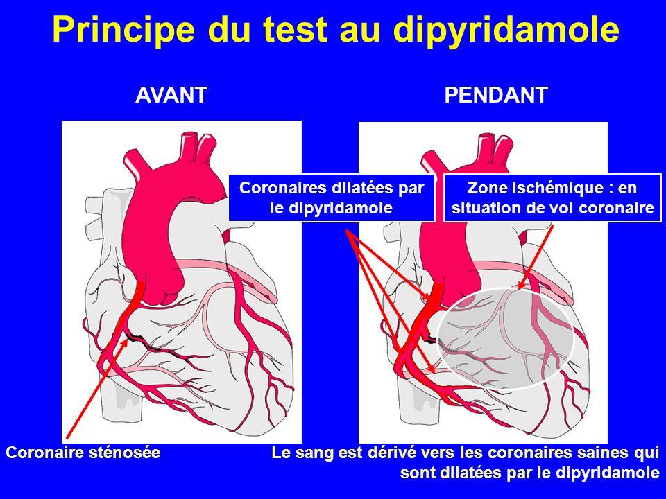 Principe du test au dipyridamole
