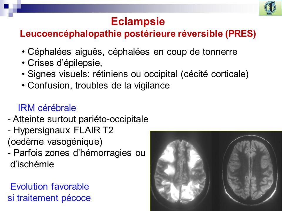 Eclampsie Leucoencéphalopathie postérieure réversible (PRES)