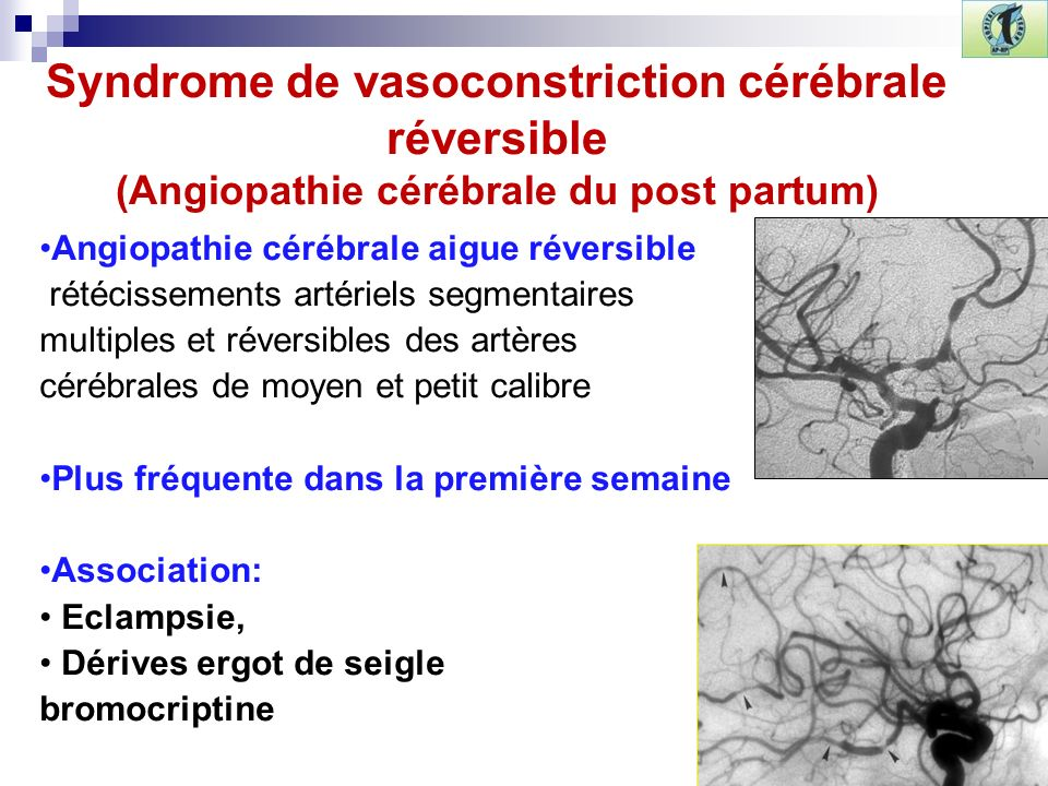Syndrome de vasoconstriction cérébrale réversible