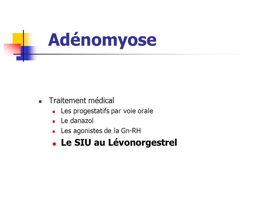 Adénomyose Le SIU au Lévonorgestrel Traitement médical