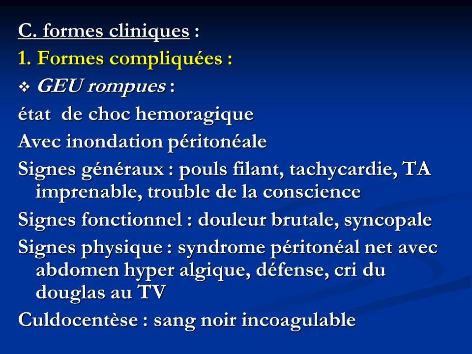 C. formes cliniques : 1. Formes compliquées : GEU rompues : état de choc hemoragique. Avec inondation péritonéale.