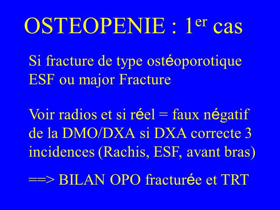 OSTEOPENIE : 1er casSi fracture de type ostéoporotique ESF ou major Fracture.