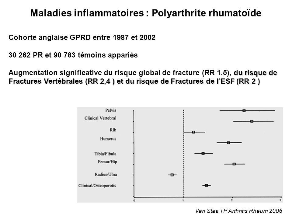 Maladies inflammatoires : Polyarthrite rhumatoïde