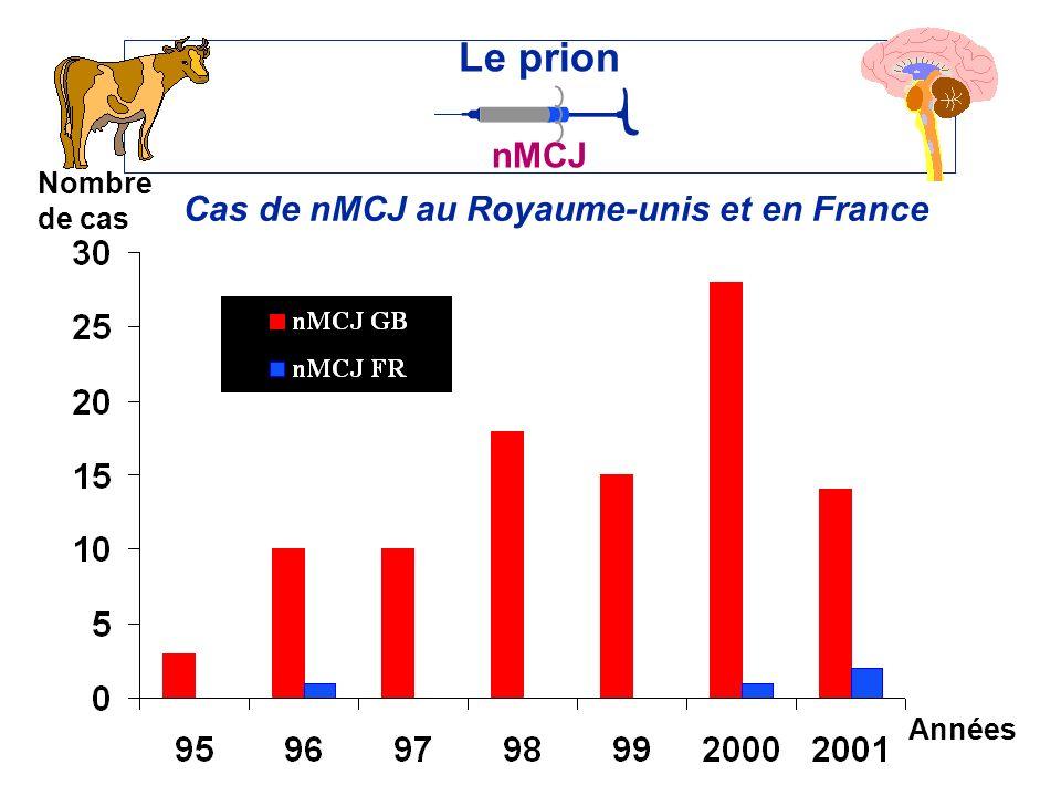 Cas de nMCJ au Royaume-unis et en France