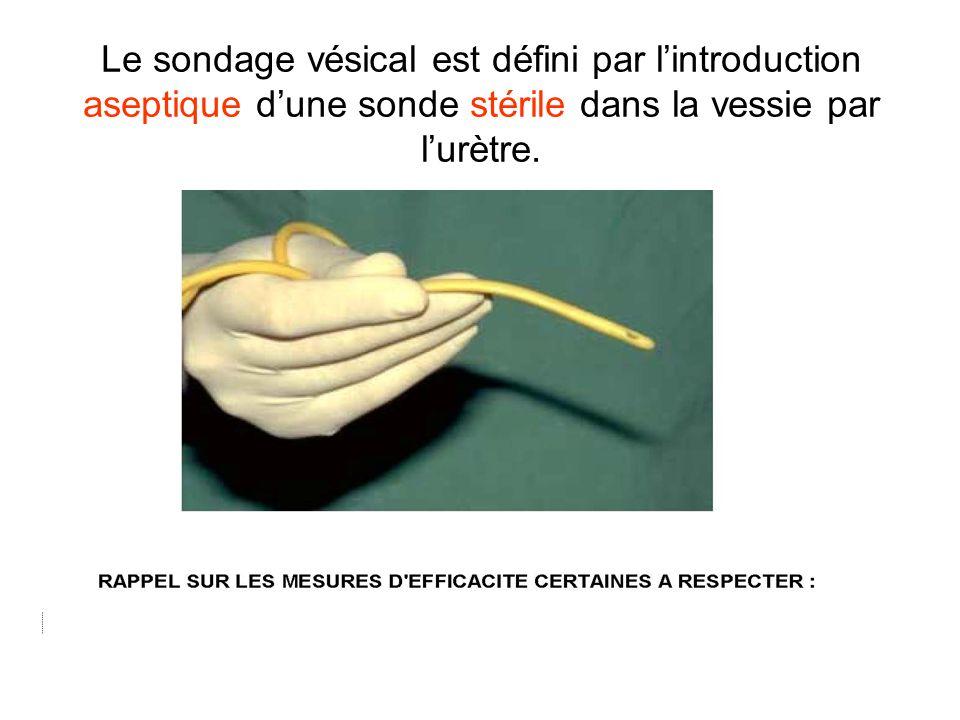 Le sondage vésical est défini par l'introduction aseptique d'une sonde stérile dans la vessie par l'urètre.