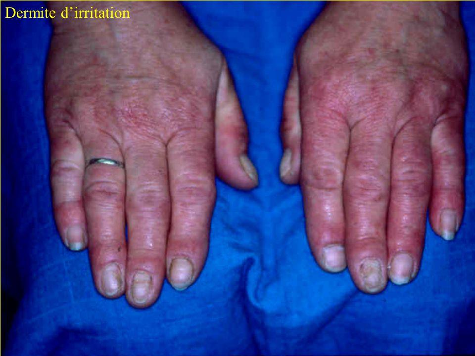 Dermite d'irritation C.