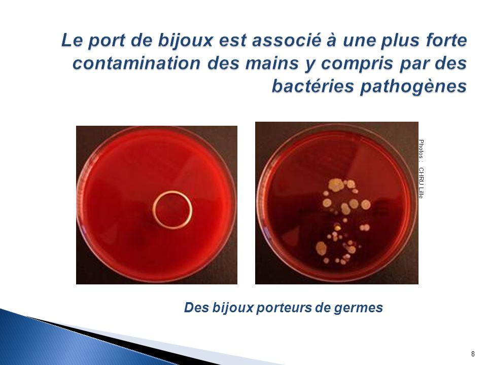 Sensibilisation SHA Le port de bijoux est associé à une plus forte contamination des mains y compris par des bactéries pathogènes.