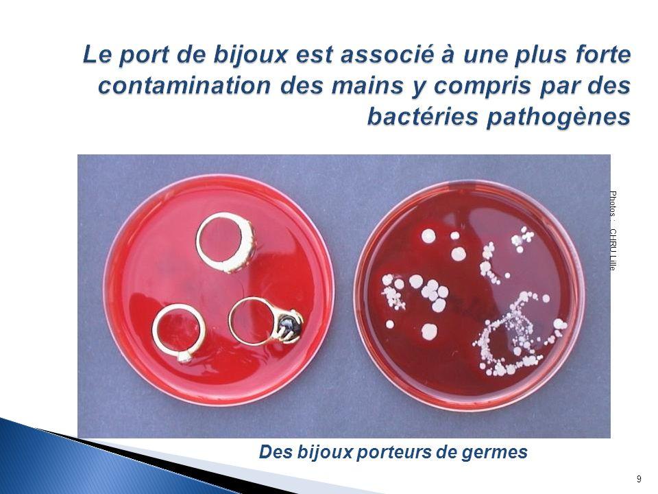 Le port de bijoux est associé à une plus forte contamination des mains y compris par des bactéries pathogènes