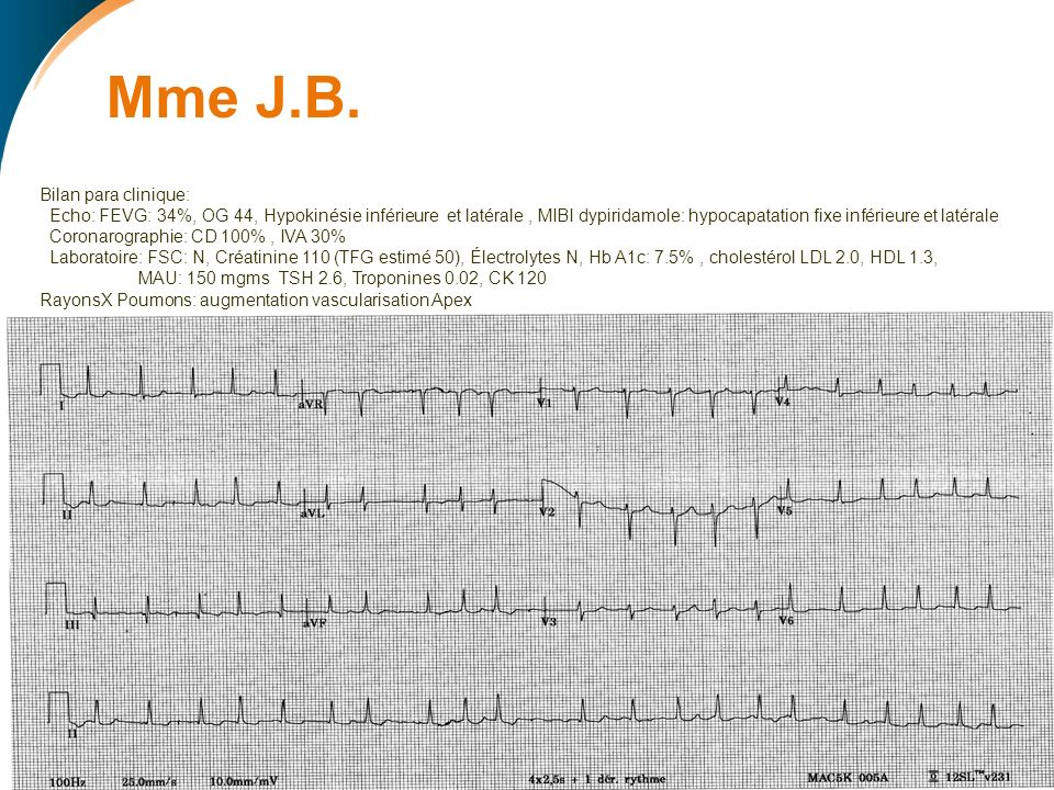 Mme J.B. ECG: Bilan para clinique:
