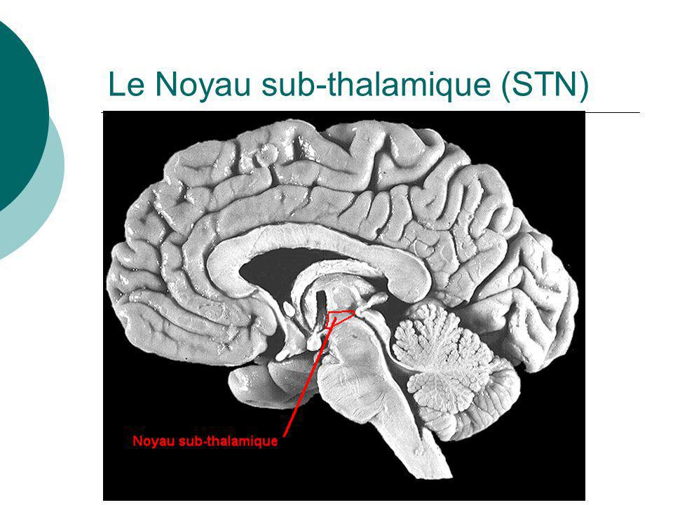 Le Noyau sub-thalamique (STN)